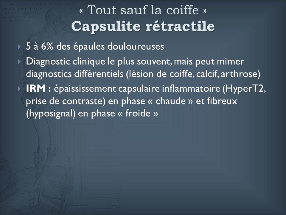 Capsulite rétractile « Tout sauf la coiffe » Capsulite rétractile 5 à 6% des épaules douloureuses Diagnostic clinique le plus souvent, mais peut mimer