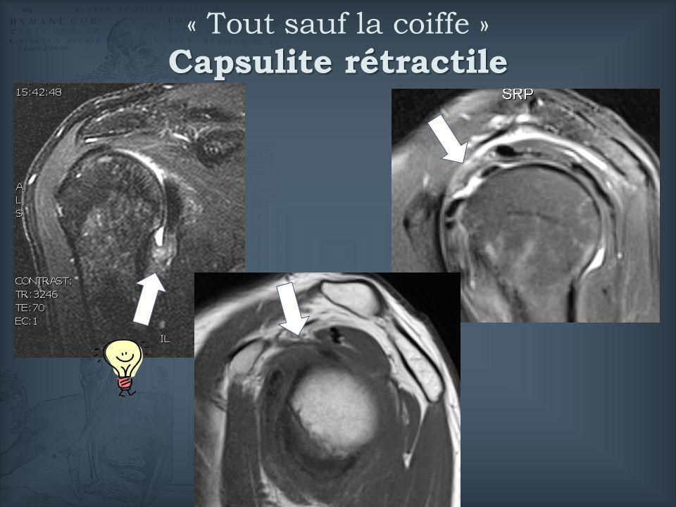 Capsulite rétractile « Tout sauf la coiffe » Capsulite rétractile