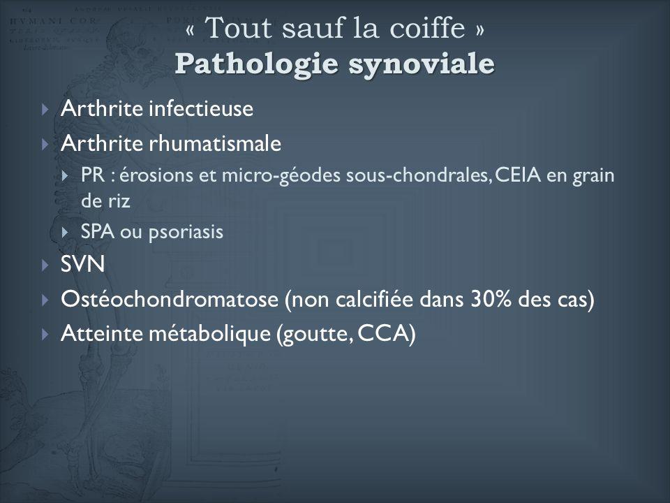 Pathologie synoviale « Tout sauf la coiffe » Pathologie synoviale Arthrite infectieuse Arthrite rhumatismale PR : érosions et micro-géodes sous-chondr