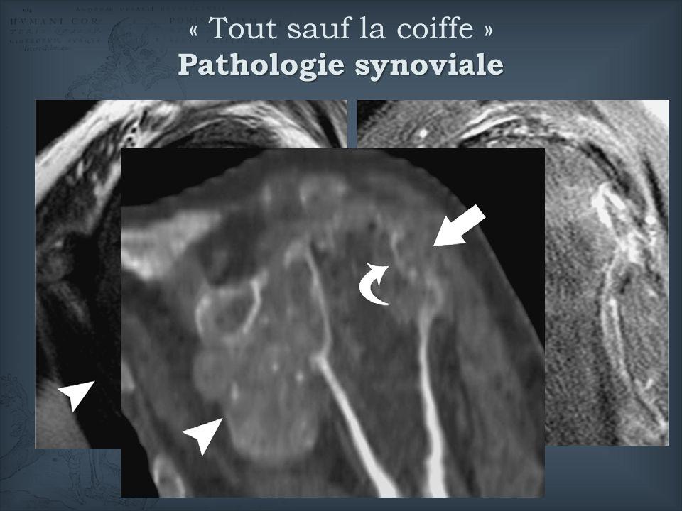 Pathologie synoviale « Tout sauf la coiffe » Pathologie synoviale © Farid, EJR 2008