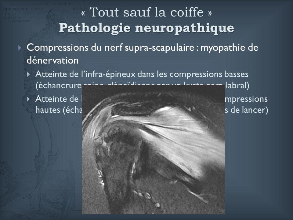 Pathologie neuropathique « Tout sauf la coiffe » Pathologie neuropathique Compressions du nerf supra-scapulaire : myopathie de dénervation Atteinte de