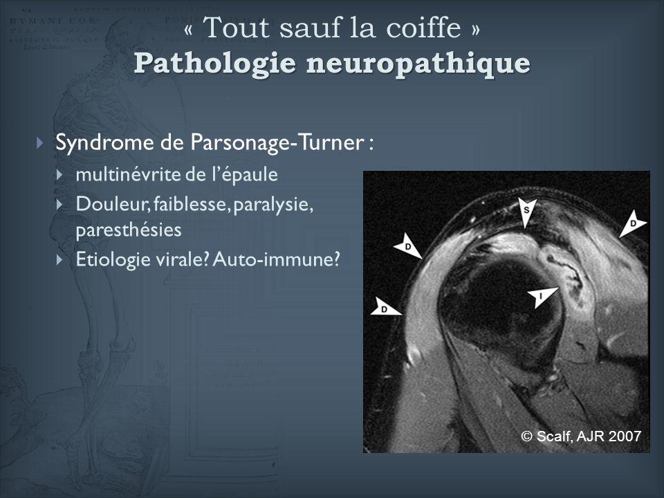 Pathologie neuropathique « Tout sauf la coiffe » Pathologie neuropathique Syndrome de Parsonage-Turner : multinévrite de lépaule Douleur, faiblesse, p