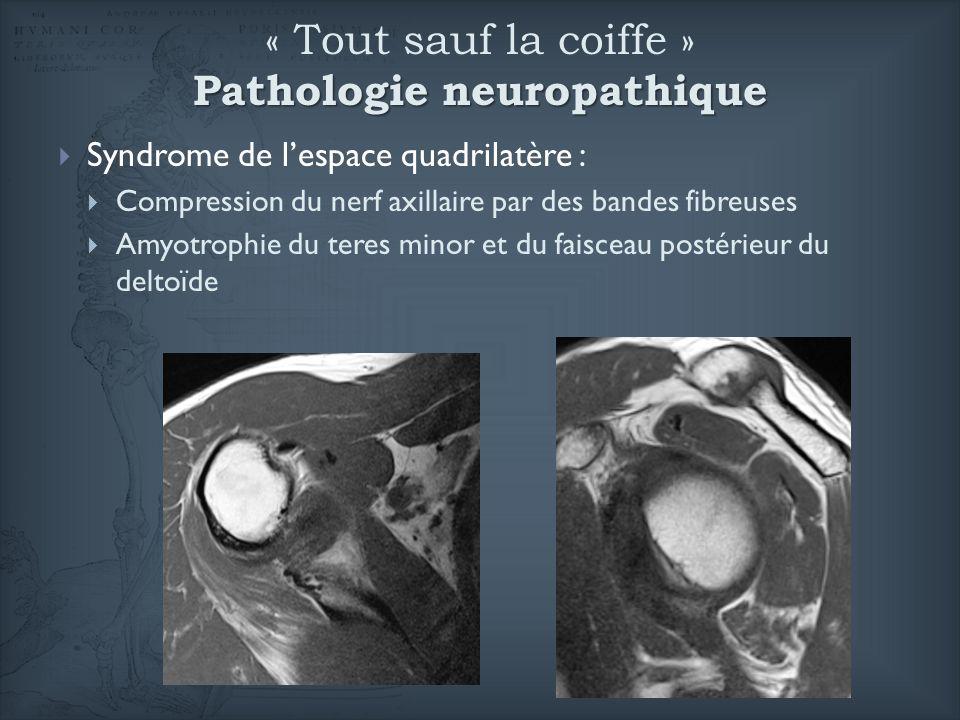 Pathologie neuropathique « Tout sauf la coiffe » Pathologie neuropathique Syndrome de lespace quadrilatère : Compression du nerf axillaire par des ban