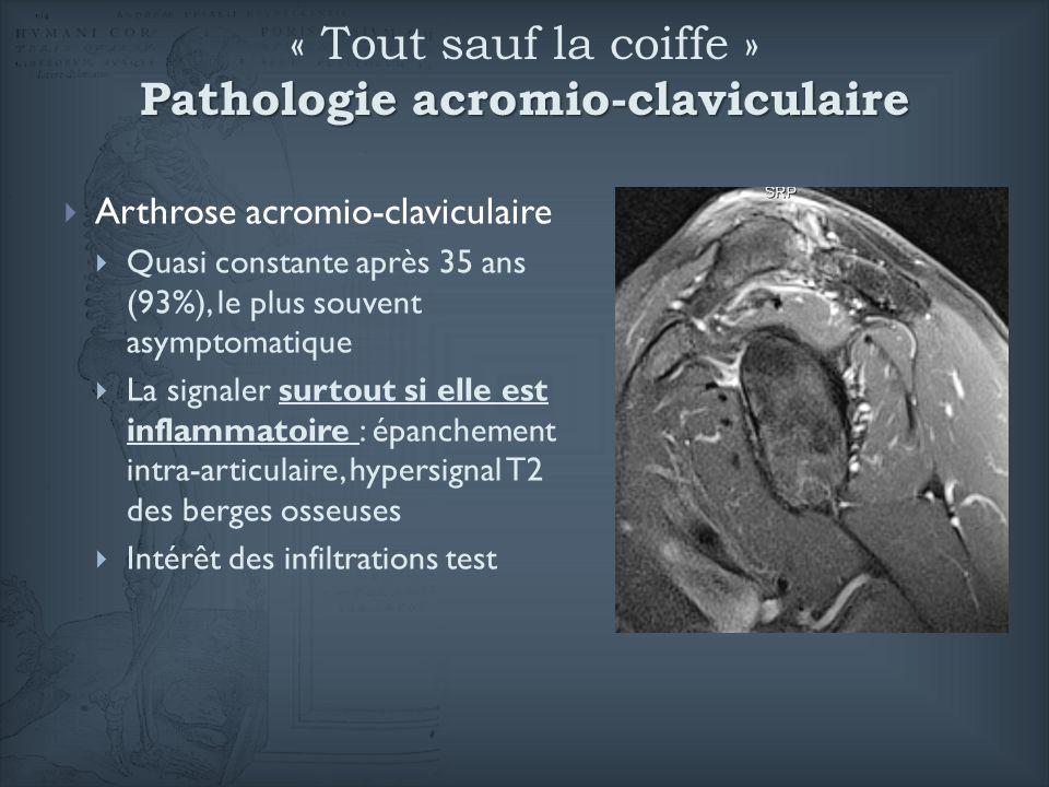 Pathologie acromio-claviculaire « Tout sauf la coiffe » Pathologie acromio-claviculaire Arthrose acromio-claviculaire Quasi constante après 35 ans (93