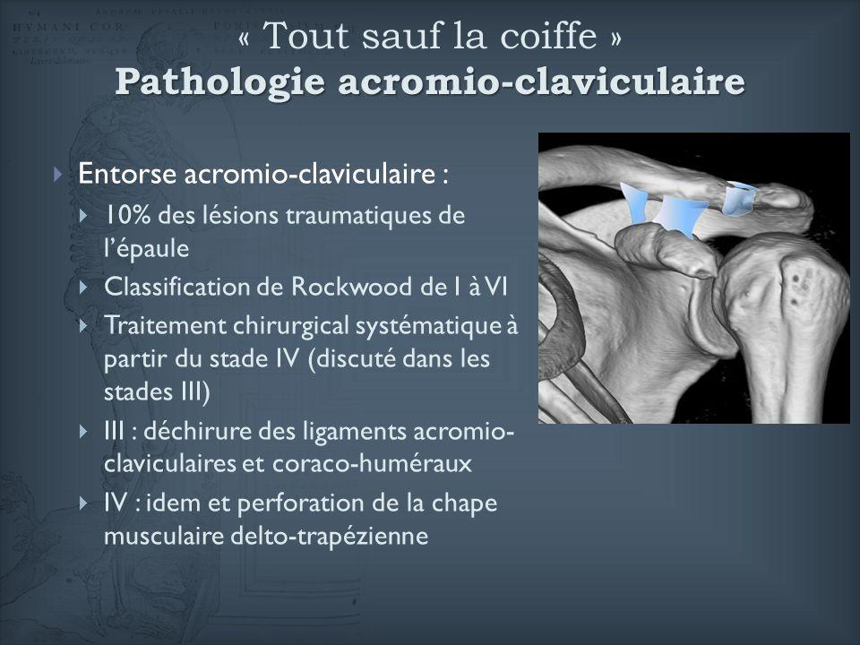 Pathologie acromio-claviculaire « Tout sauf la coiffe » Pathologie acromio-claviculaire Entorse acromio-claviculaire : 10% des lésions traumatiques de