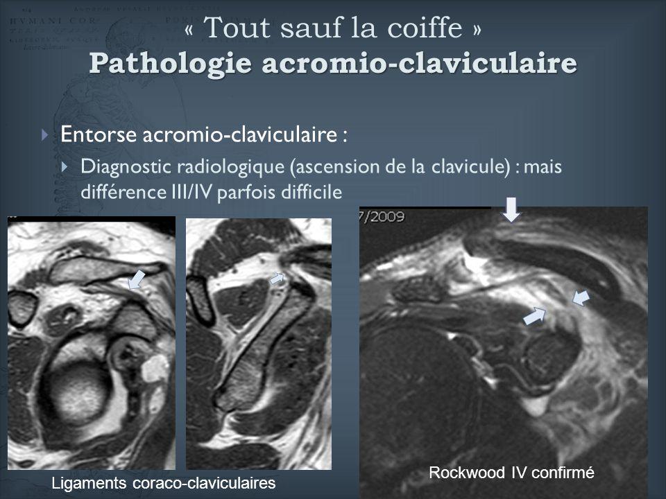 Pathologie acromio-claviculaire « Tout sauf la coiffe » Pathologie acromio-claviculaire Entorse acromio-claviculaire : Diagnostic radiologique (ascens