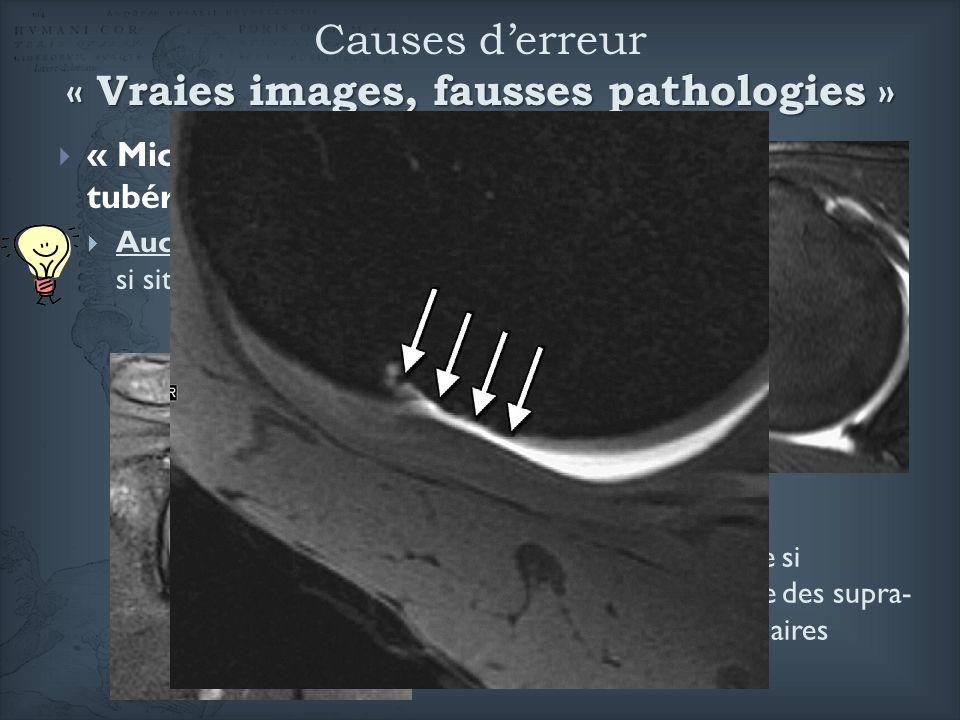« Micro-géodes » de la grosse tubérosité : Aucune signification pathologique si situation postérieure Signes de tendinopathie si développées à lenthès