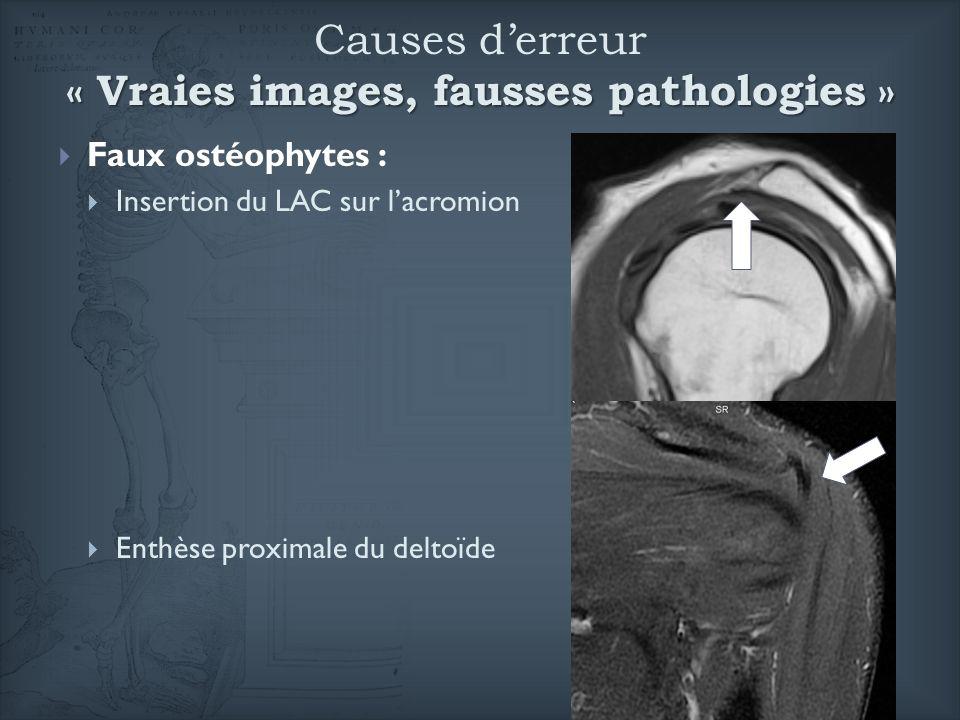 Faux ostéophytes : Insertion du LAC sur lacromion Enthèse proximale du deltoïde « Vraies images, fausses pathologies » Causes derreur « Vraies images,
