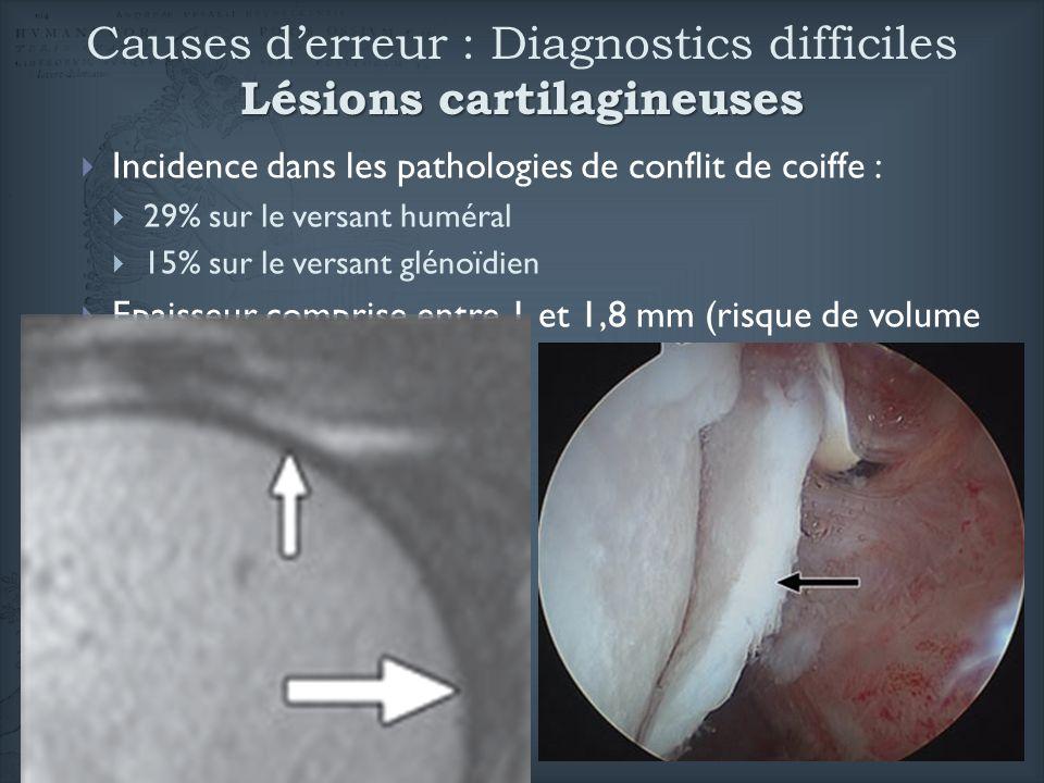 Lésions cartilagineuses Causes derreur : Diagnostics difficiles Lésions cartilagineuses Incidence dans les pathologies de conflit de coiffe : 29% sur