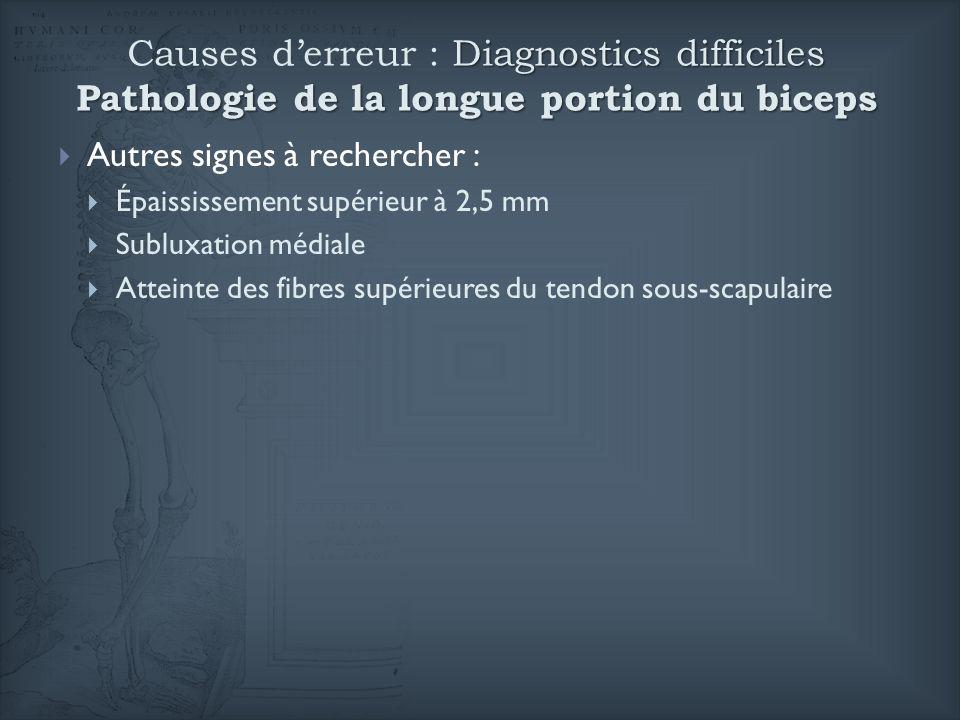 Diagnostics difficiles Pathologie de la longue portion du biceps Causes derreur : Diagnostics difficiles Pathologie de la longue portion du biceps Aut