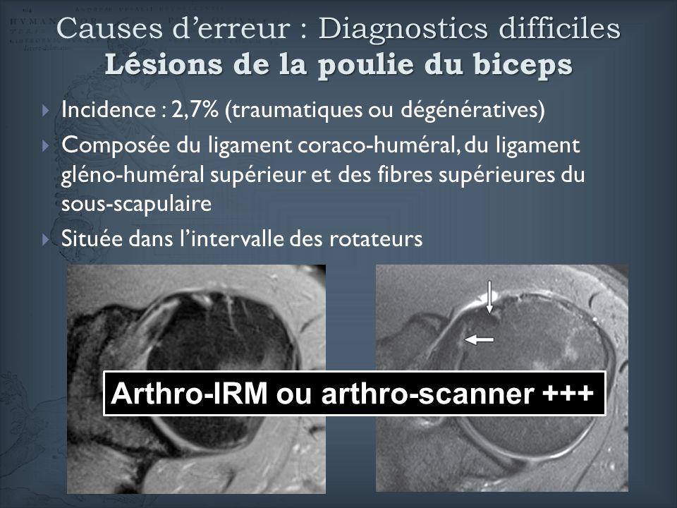 Diagnostics difficiles Lésions de la poulie du biceps Causes derreur : Diagnostics difficiles Lésions de la poulie du biceps Incidence : 2,7% (traumat