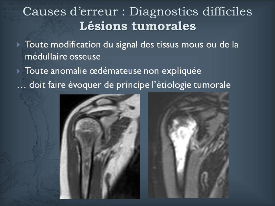 Lésions tumorales Causes derreur : Diagnostics difficiles Lésions tumorales Toute modification du signal des tissus mous ou de la médullaire osseuse T