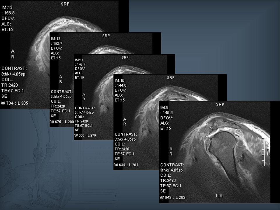 Le deltoïde dans les ruptures de coiffe A ne pas oublier… Le deltoïde dans les ruptures de coiffe Rôle important dans la genèse des douleurs En cas de prévision de pose de prothèse totale inversée, rôle mécanique majeur Incidence de 0,4 à 8% selon les séries