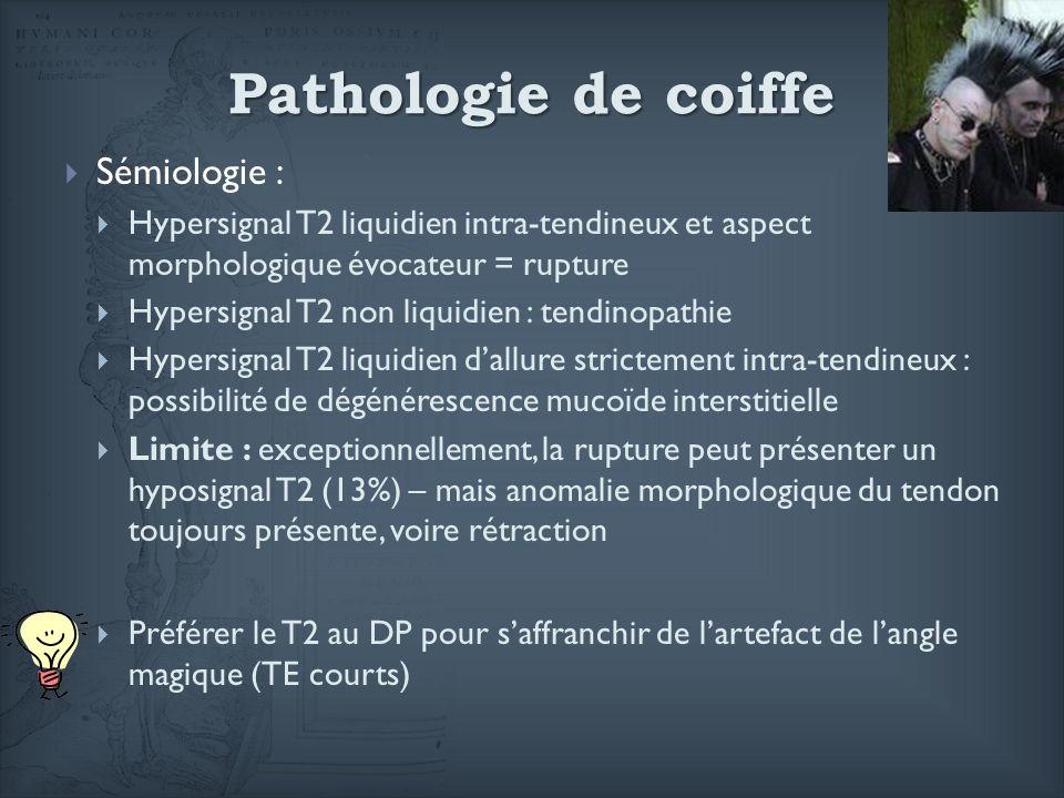 Sémiologie : Hypersignal T2 liquidien intra-tendineux et aspect morphologique évocateur = rupture Hypersignal T2 non liquidien : tendinopathie Hypersi