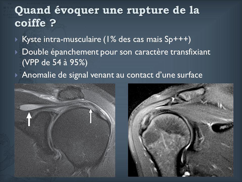 Quand évoquer une rupture de la coiffe ? Kyste intra-musculaire (1% des cas mais Sp+++) Double épanchement pour son caractère transfixiant (VPP de 54
