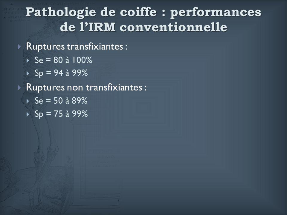 Pathologie de coiffe : performances de lIRM conventionnelle Ruptures transfixiantes : Se = 80 à 100% Sp = 94 à 99% Ruptures non transfixiantes : Se =