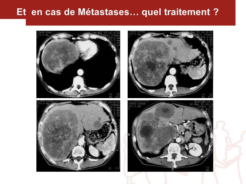 Et en cas de Métastases… quel traitement ?