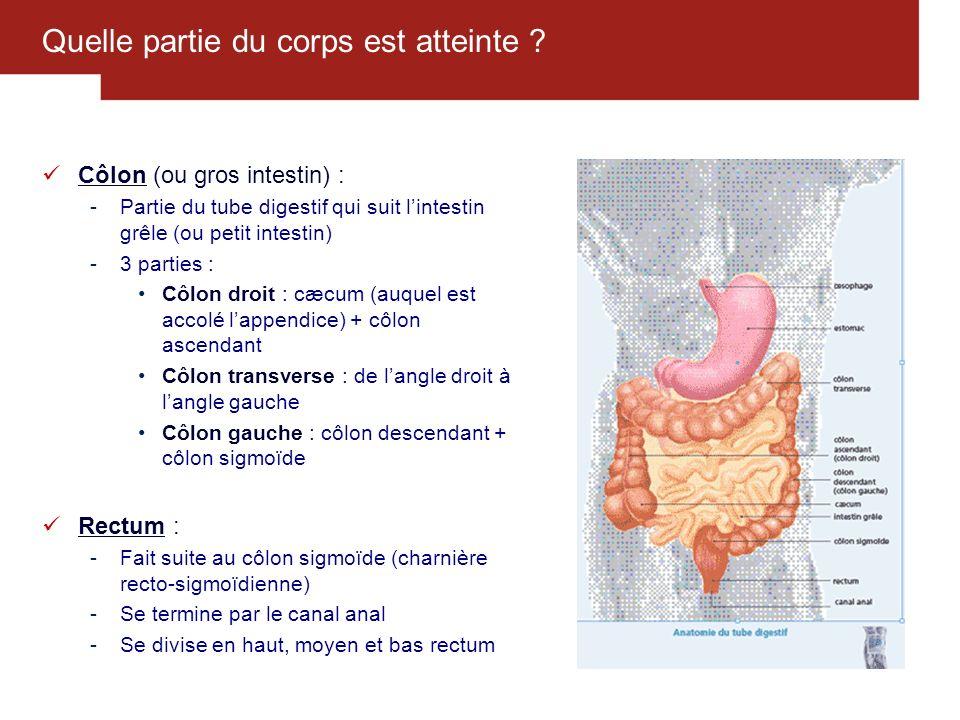 16 Comment dépister le cancer colorectal (2/3) .