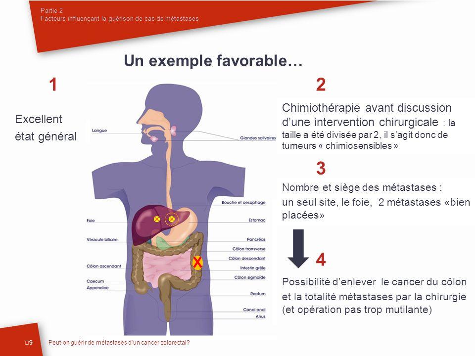 Possibilité denlever le cancer du côlon et la totalité métastases par la chirurgie (et opération pas trop mutilante) Partie 2 Facteurs influençant la