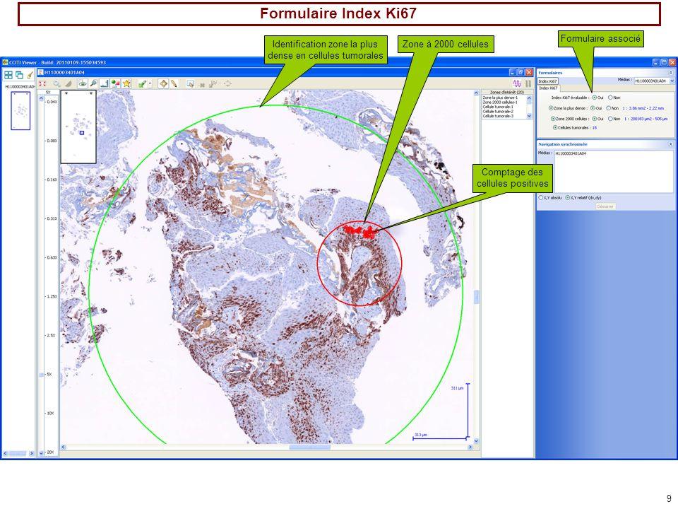 9 Formulaire Index Ki67 Identification zone la plus dense en cellules tumorales Zone à 2000 cellules Comptage des cellules positives Formulaire associ