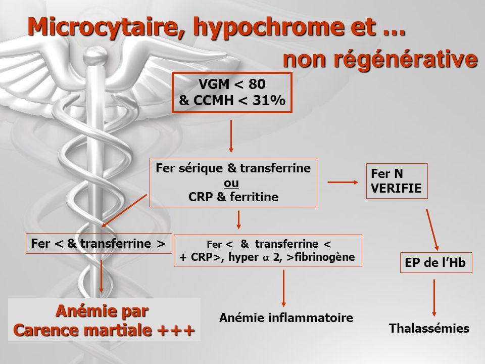 DIAGNOSTIC DIFFERENTIEL DE LA MICROCYTOSE