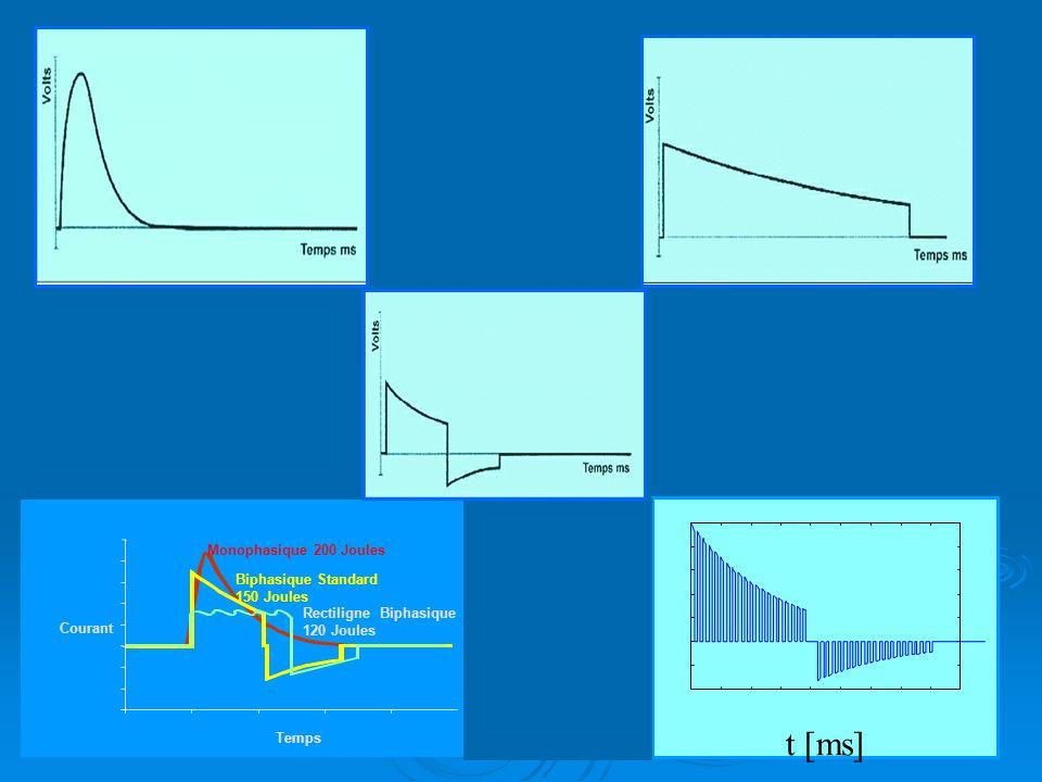 43 35 15 010203040 RB120J Ampère BS130J Mono200J 50 Courant Temps Monophasique 200 Joules Biphasique Standard 150 Joules Rectiligne Biphasique 120 Joules t [ms]