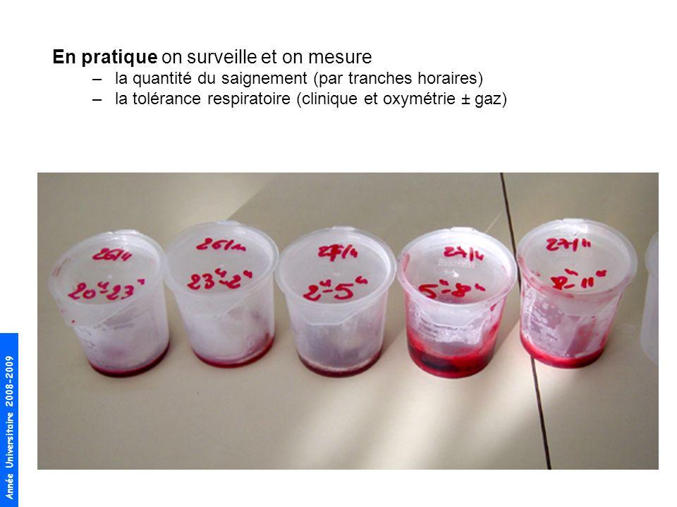 Année Universitaire 2008-2009 En pratique on surveille et on mesure –la quantité du saignement (par tranches horaires) –la tolérance respiratoire (clinique et oxymétrie ± gaz)