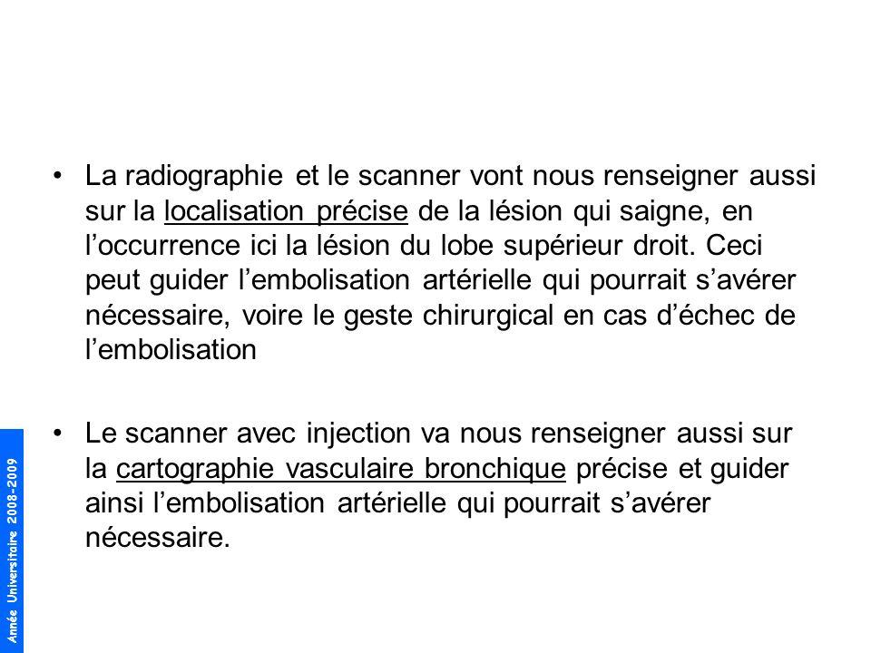 Année Universitaire 2008-2009 La radiographie et le scanner vont nous renseigner aussi sur la localisation précise de la lésion qui saigne, en loccurrence ici la lésion du lobe supérieur droit.