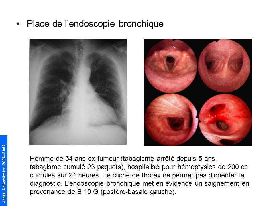 Année Universitaire 2008-2009 Place de lendoscopie bronchique Homme de 54 ans ex-fumeur (tabagisme arrêté depuis 5 ans, tabagisme cumulé 23 paquets), hospitalisé pour hémoptysies de 200 cc cumulés sur 24 heures.