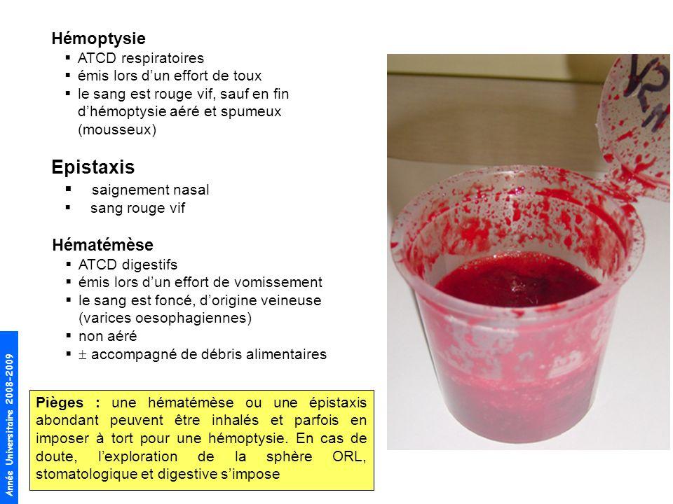 Année Universitaire 2008-2009 Hémoptysie ATCD respiratoires émis lors dun effort de toux le sang est rouge vif, sauf en fin dhémoptysie aéré et spumeux (mousseux) Epistaxis saignement nasal sang rouge vif Hématémèse ATCD digestifs émis lors dun effort de vomissement le sang est foncé, dorigine veineuse (varices oesophagiennes) non aéré accompagné de débris alimentaires Pièges : une hématémèse ou une épistaxis abondant peuvent être inhalés et parfois en imposer à tort pour une hémoptysie.