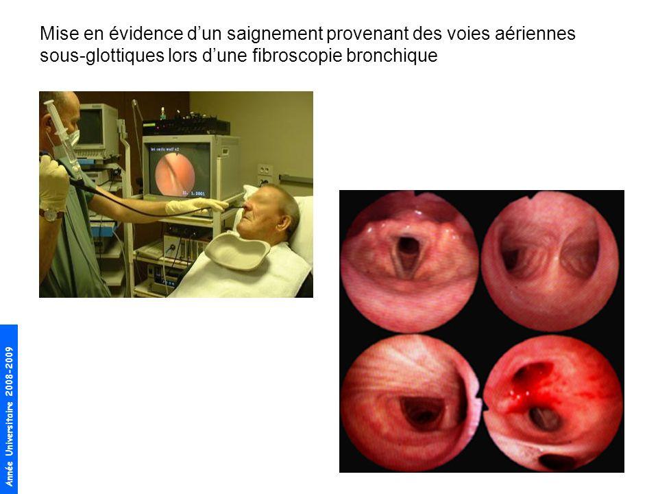 Année Universitaire 2008-2009 Place de lendoscopie bronchique –confirme le diagnostic dhémoptysie –recherche la lésion qui saigne si celle-ci est dans une bronche proximale (tumeur endobronchique) –localise la topographie du saignement (essentiel dans la prise en charge des hémoptysies graves)