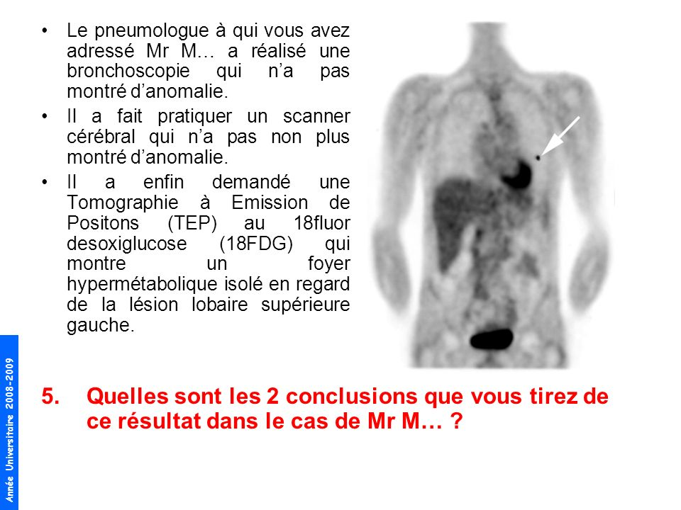 Année Universitaire 2008-2009 Le pneumologue à qui vous avez adressé Mr M… a réalisé une bronchoscopie qui na pas montré danomalie. Il a fait pratique