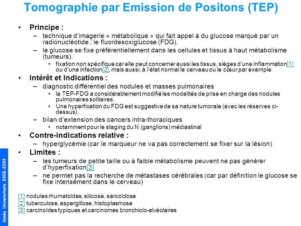 Année Universitaire 2008-2009 Tomographie par Emission de Positons (TEP) Principe : –technique dimagerie « métabolique » qui fait appel à du glucose m