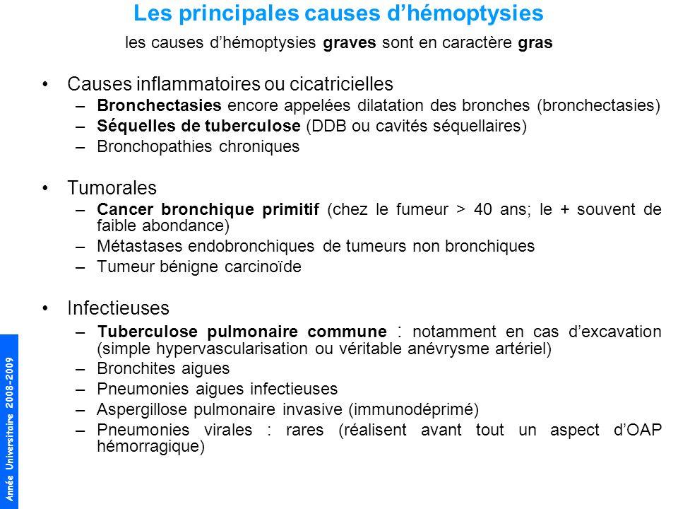 Année Universitaire 2008-2009 Autres –Traumatisme thoracique (contusion pulmonaire ou exceptionnelle fracture bronchique) –Insuffisances ventriculaires gauches et rétrécissement mitral (OAP hémorragique) –Embolie pulmonaire (en cas dEP compliquée dinfarctus pulmonaires, habituellement crachats hémoptoïques noirâtres) –Anévrysmes artério-veineux acquis ou congénitaux –Anticoagulants (surdosage en héparine ou AVK, toujours rechercher une cause locale) –Syndromes Hémorragies Alvéolaires (contexte particulier : infectieux, angéites, mal.
