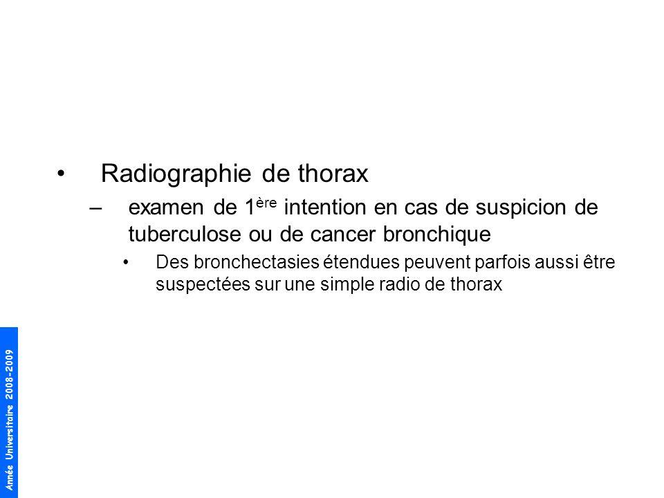 Année Universitaire 2008-2009 Radiographie de thorax –examen de 1 ère intention en cas de suspicion de tuberculose ou de cancer bronchique Des bronche