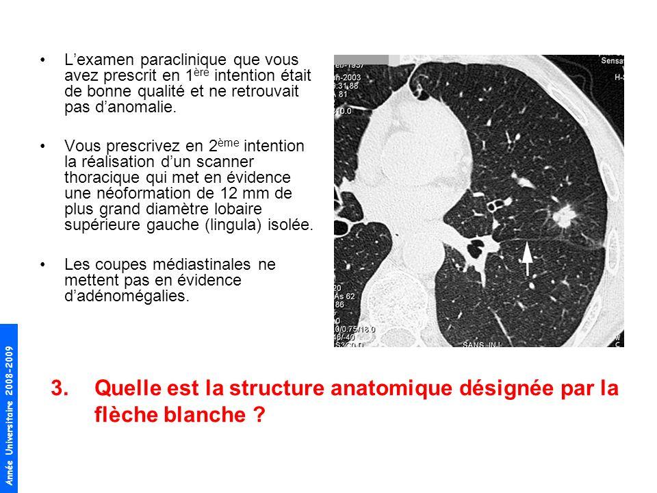 7.Quel est lordre de grandeur de la survie à 5 ans de ce cancer bronchique non à petites cellules (CBNPC), de petite taille, sans envahissement ganglionnaire, qui a été réséquée en totalité .