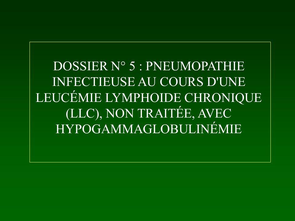 DOSSIER N° 5 : PNEUMOPATHIE INFECTIEUSE AU COURS D'UNE LEUCÉMIE LYMPHOIDE CHRONIQUE (LLC), NON TRAITÉE, AVEC HYPOGAMMAGLOBULINÉMIE