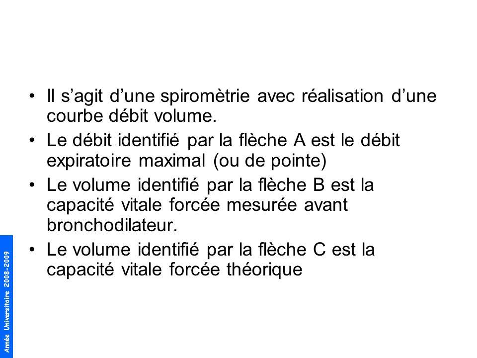 Année Universitaire 2008-2009 2.A votre avis de quelle affection respiratoire chronique souffre Monsieur D …, argumentez ?