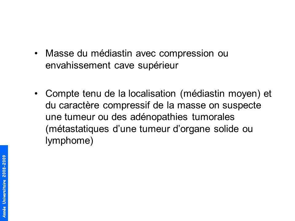 Année Universitaire 2008-2009 Masse du médiastin avec compression ou envahissement cave supérieur Compte tenu de la localisation (médiastin moyen) et