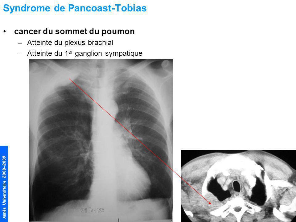 Année Universitaire 2008-2009 Syndrome de Pancoast-Tobias cancer du sommet du poumon –Atteinte du plexus brachial –Atteinte du 1 er ganglion sympatiqu