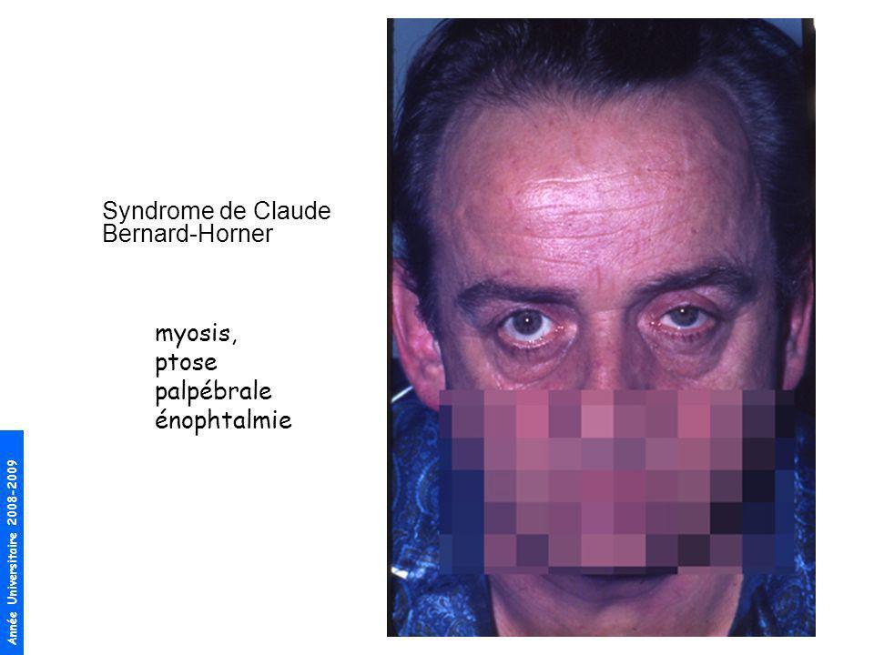 Année Universitaire 2008-2009 Syndrome de Claude Bernard-Horner myosis, ptose palpébrale énophtalmie