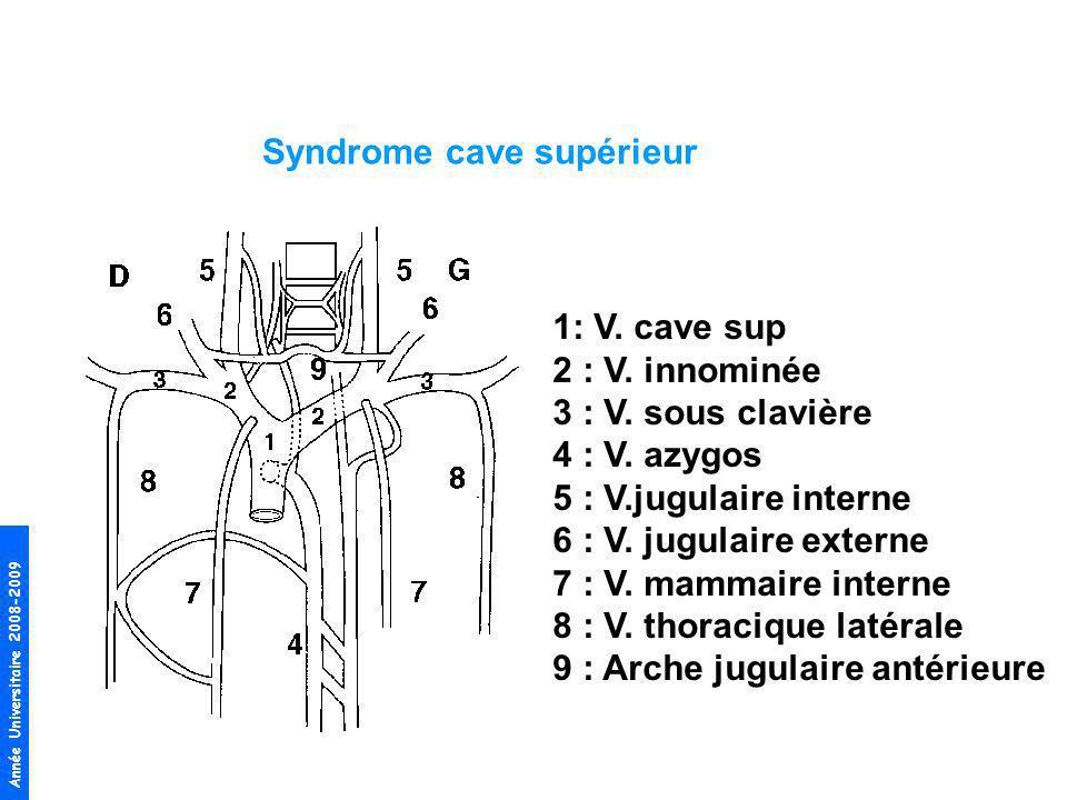 Année Universitaire 2008-2009 Syndrome cave supérieur 1: V. cave sup 2 : V. innominée 3 : V. sous clavière 4 : V. azygos 5 : V.jugulaire interne 6 : V