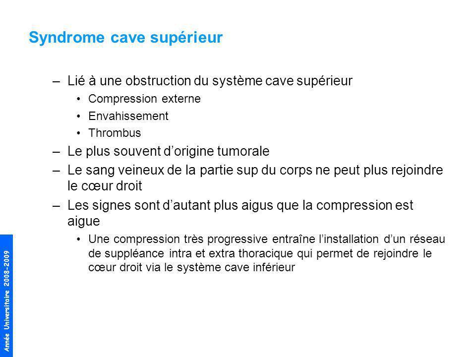 Année Universitaire 2008-2009 Syndrome cave supérieur –Lié à une obstruction du système cave supérieur Compression externe Envahissement Thrombus –Le