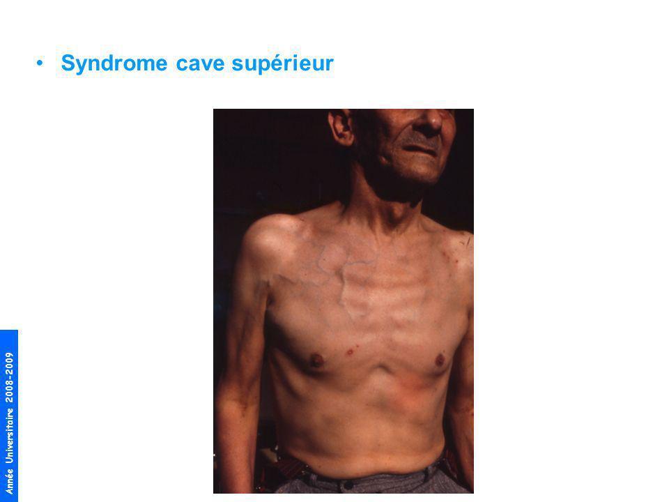 Année Universitaire 2008-2009 Syndrome cave supérieur
