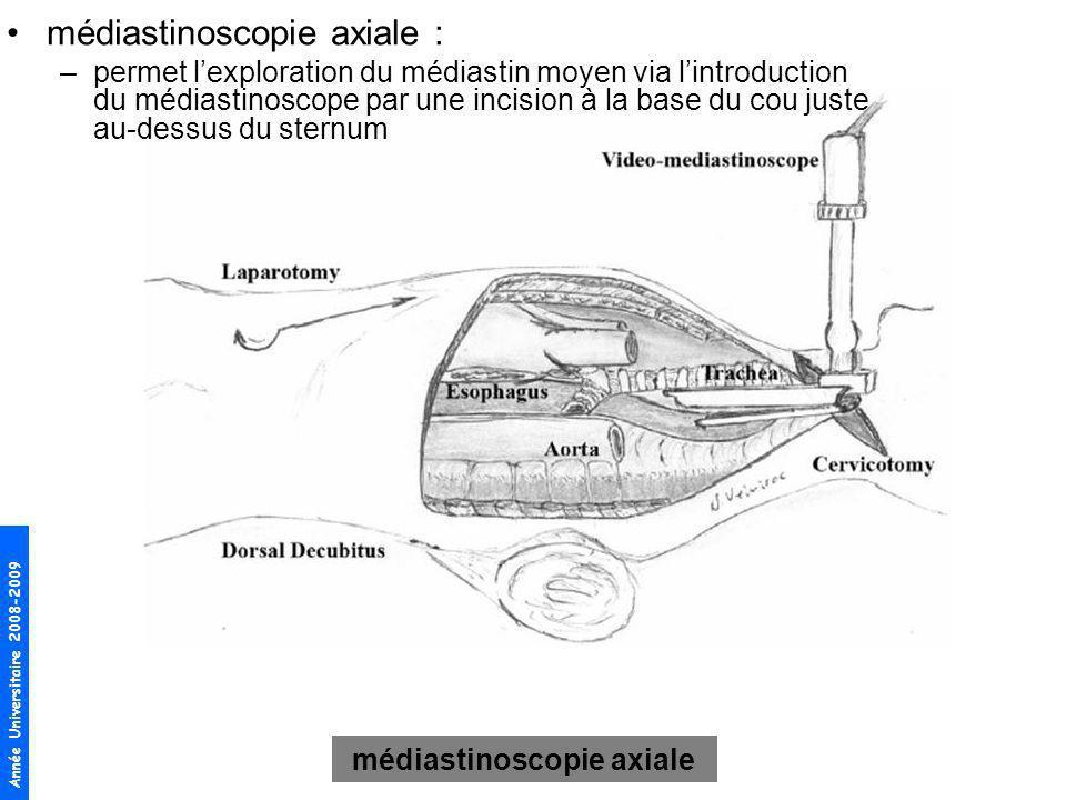 Année Universitaire 2008-2009 médiastinoscopie axiale médiastinoscopie axiale : –permet lexploration du médiastin moyen via lintroduction du médiastin