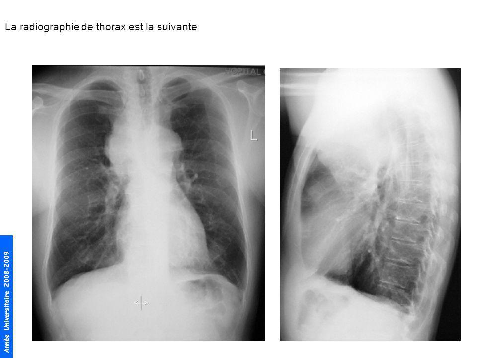 Année Universitaire 2008-2009 La radiographie de thorax est la suivante