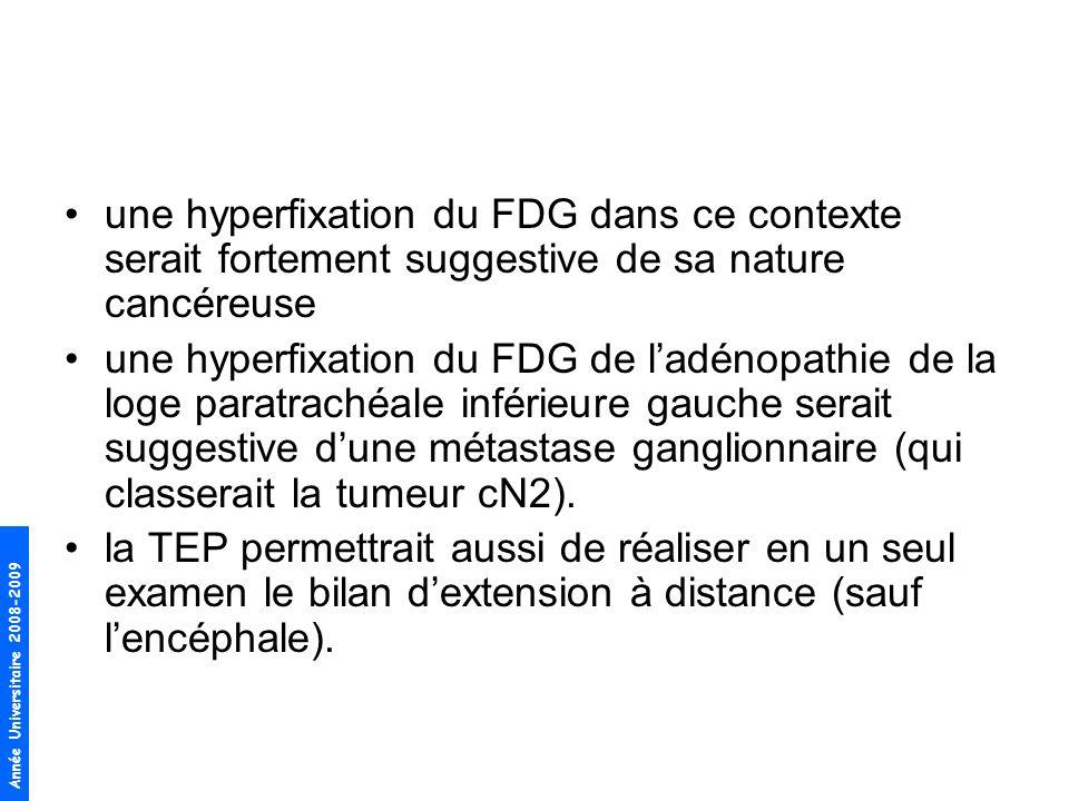 Année Universitaire 2008-2009 une hyperfixation du FDG dans ce contexte serait fortement suggestive de sa nature cancéreuse une hyperfixation du FDG d