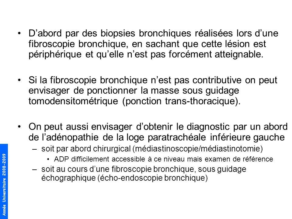 Année Universitaire 2008-2009 Dabord par des biopsies bronchiques réalisées lors dune fibroscopie bronchique, en sachant que cette lésion est périphér