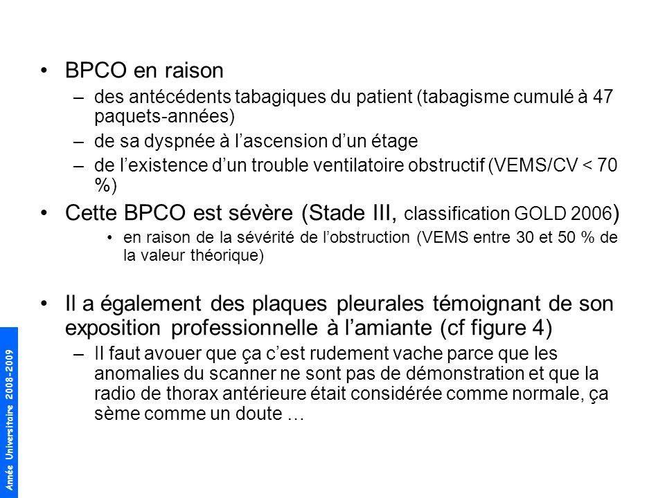 BPCO en raison –des antécédents tabagiques du patient (tabagisme cumulé à 47 paquets-années) –de sa dyspnée à lascension dun étage –de lexistence dun