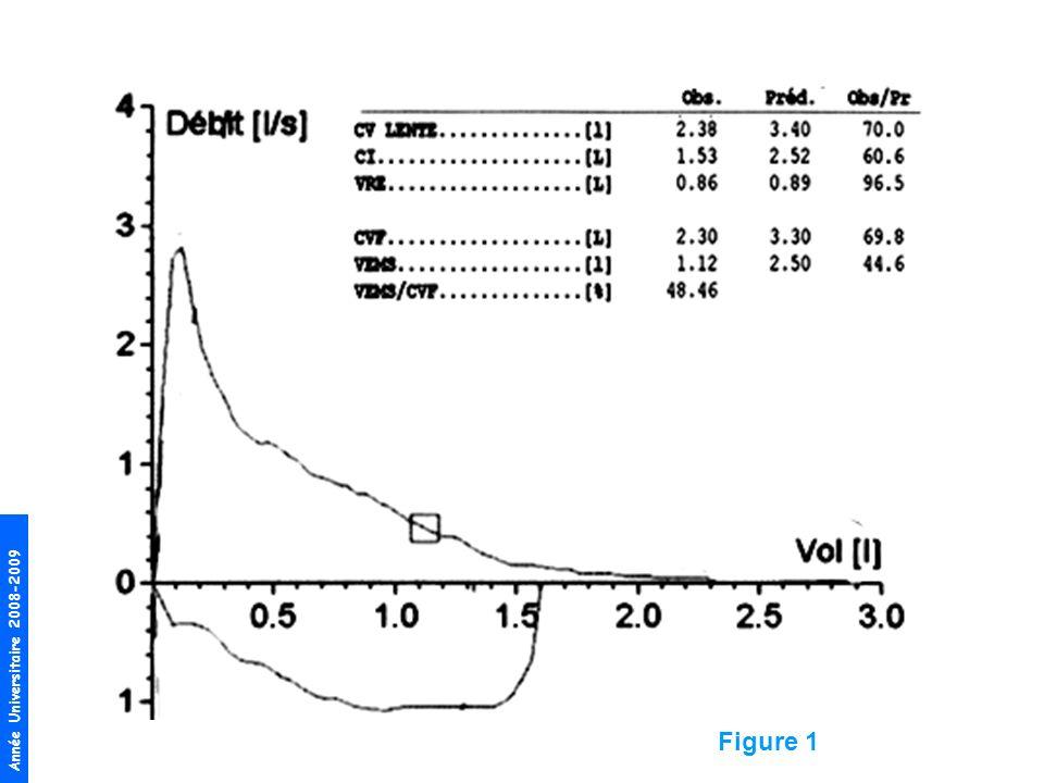 BPCO en raison –des antécédents tabagiques du patient (tabagisme cumulé à 47 paquets-années) –de sa dyspnée à lascension dun étage –de lexistence dun trouble ventilatoire obstructif (VEMS/CV < 70 %) Cette BPCO est sévère (Stade III, classification GOLD 2006 ) en raison de la sévérité de lobstruction (VEMS entre 30 et 50 % de la valeur théorique) Il a également des plaques pleurales témoignant de son exposition professionnelle à lamiante (cf figure 4) –Il faut avouer que ça cest rudement vache parce que les anomalies du scanner ne sont pas de démonstration et que la radio de thorax antérieure était considérée comme normale, ça sème comme un doute …